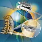 Medtronic Prestige LP Cervical disc system